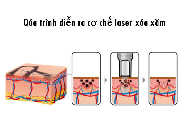 Máy laser trục khuỷu xoa xăm công nghệ Picoway