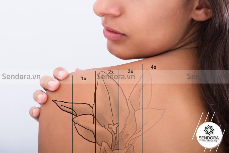 Vì một số lý do, rất nhiều người muốn xóa hình xăm cơ thể sau một thời gian xăm mình