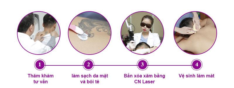 Quy trình xóa xăm bằng công nghệ laser