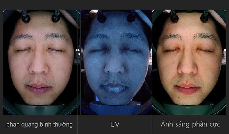 Máy phân tích da A-one Smart Chụp 3 loại ảnh của phản quang bình thường /UV/ Ánh sáng phân cực