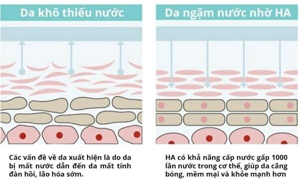 Hyaluronic Acid là gì? Công dụng của Hyaluronic Acid với da